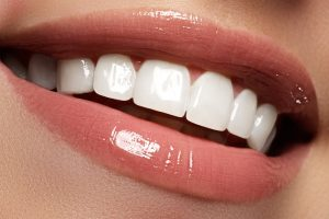Cosmetic Dentistry Grant